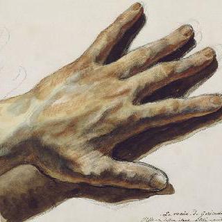 미술가의 왼손